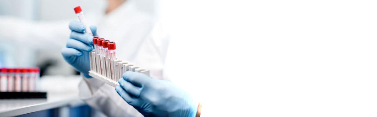 Bezplatné antigenní testování Praha 3